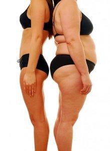 pessoa-magra-e-gorda-comparativo- Óleo de Coco